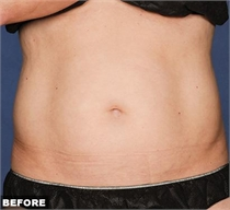 Liposonix fat reduction florida